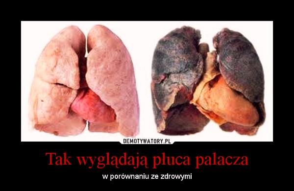 pluca palacza