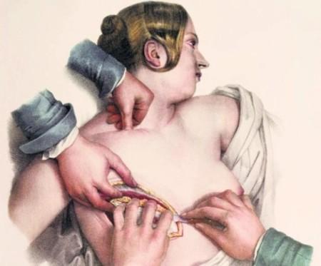 ,XIX-wieczny-sztych-przedstawiajacy-operacje-odjecia piersi